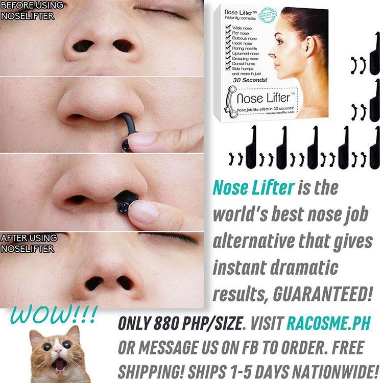Nose Lifter временно исправляет форму носа без операции
