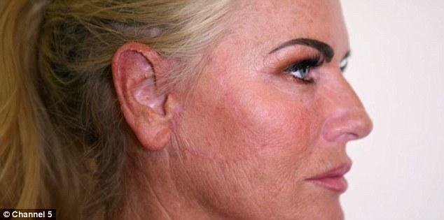 Пластическая хирургия дала блондинке новую надежду