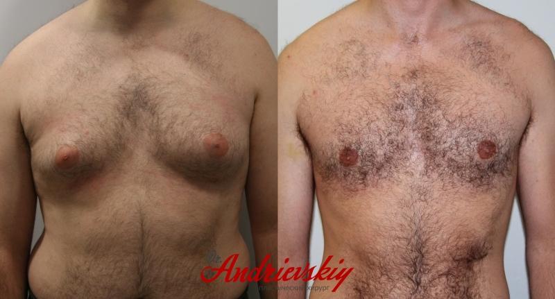 Классический пример: до и после операции