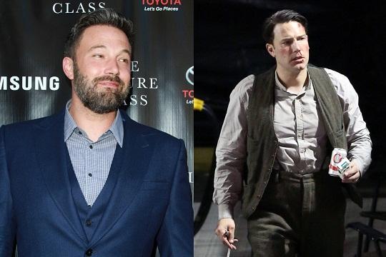 Бен до операции (слева) и после (справа)