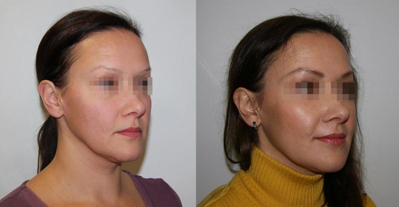 Липофилинг лица: до и после