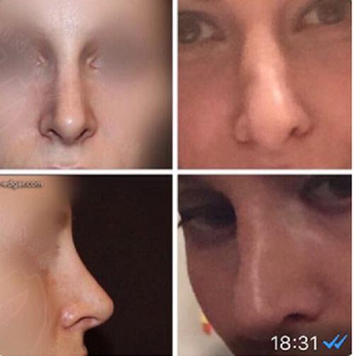 Слева - ретушь на сайте хирурга, справа - реальные фото