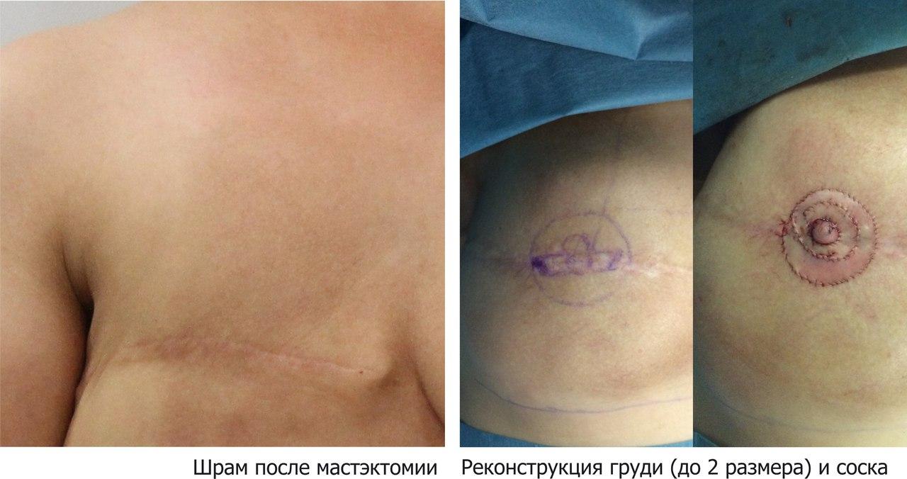 Реконструкция груди: фото из операционной хирурга Андриевского А.Н.