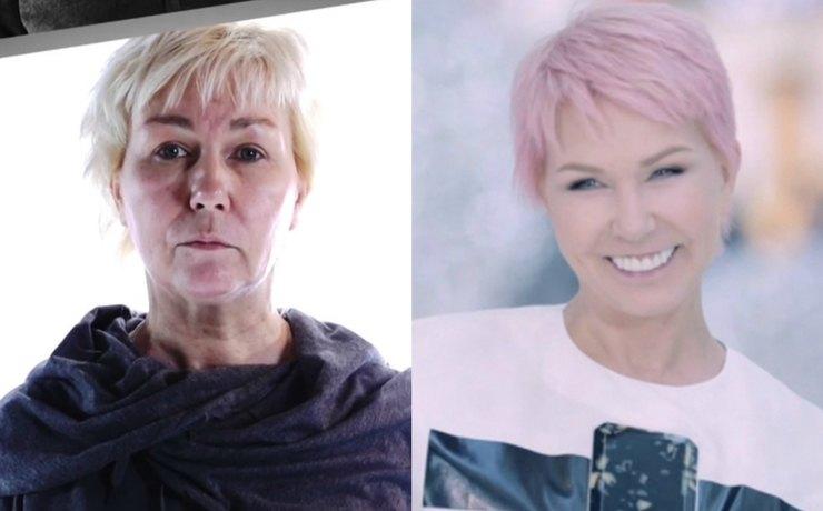 До и после: разительные перемены