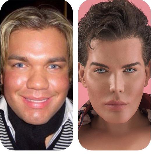 Родриго до и после серии операций