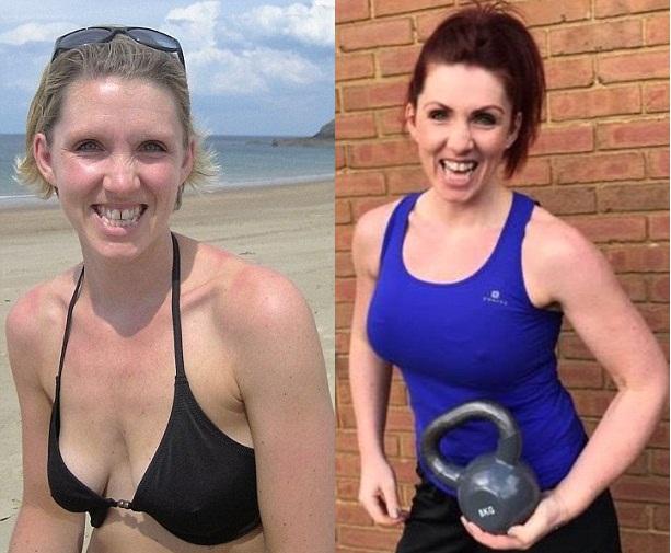 Британка до и после подтяжки груди на имплантах