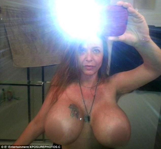 Так женщина выглядела до операции