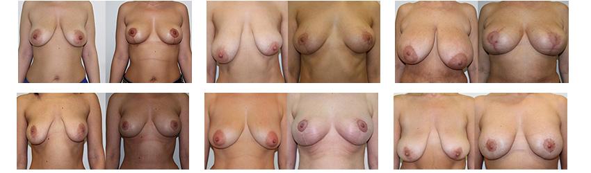 Результаты уменьшения груди (хирург - А. Андриевский)