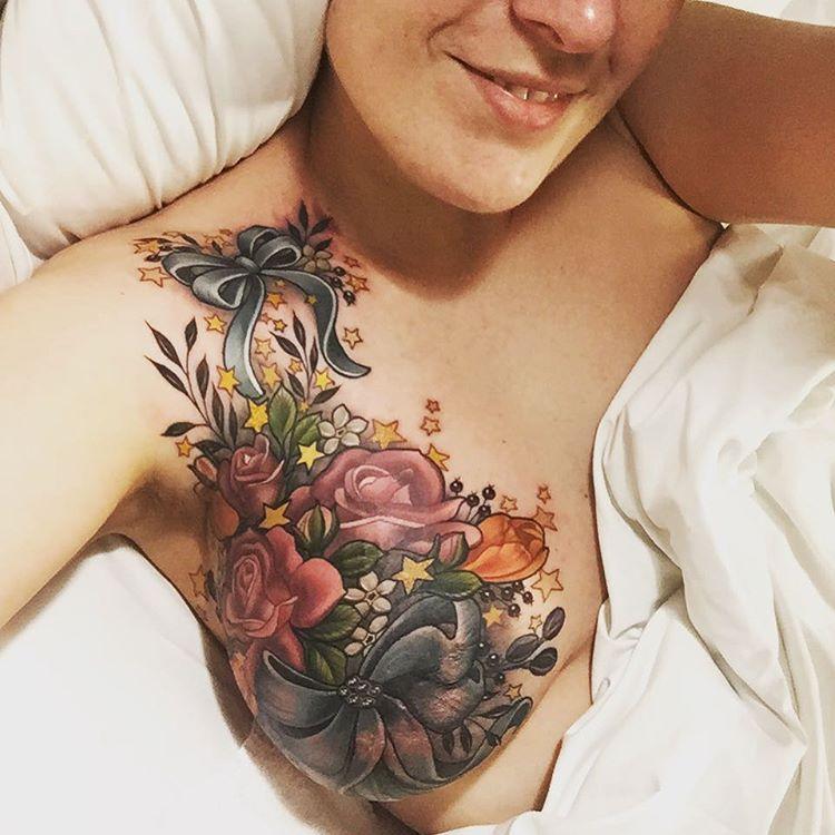 Так теперь выглядит грудь женщины после операции