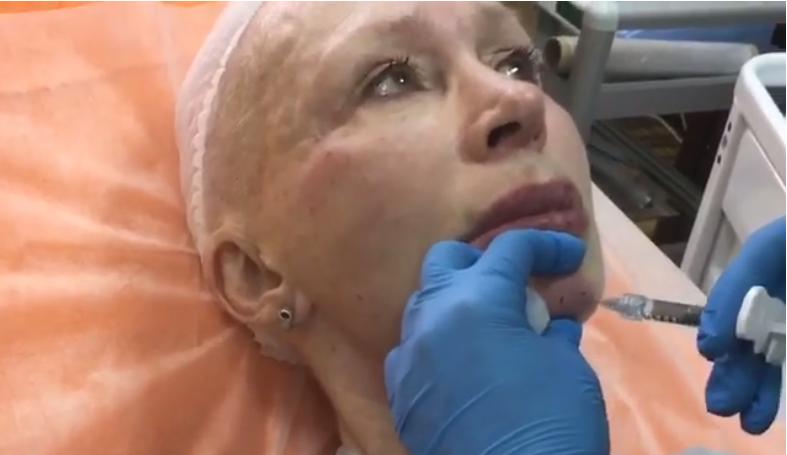 Актриса оставалась невозмутимой во время процедуры
