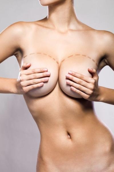 фото после уменьшения груди