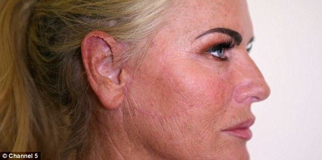 Гламурная модель жалеет о неудачной подтяжке, которая оставила на ее щеке огромный рубец
