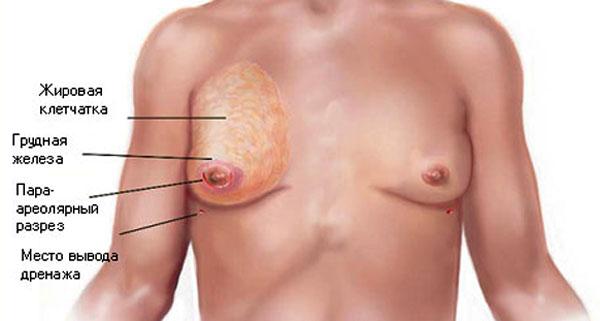 Российские мужчины все чаще делают пластику груди для устранения гинекомастии
