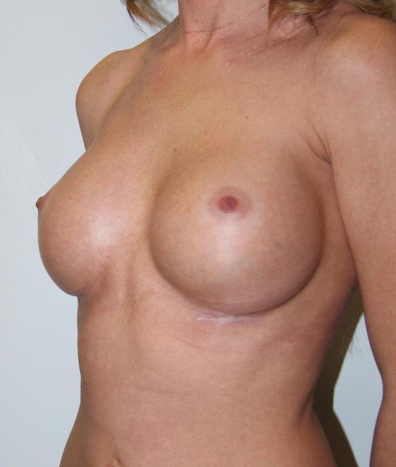 Удаление пилиакриламидного геля и восстановление груди