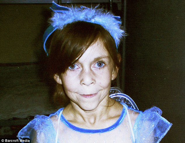 Пластика вернула молодость девушке с синдромом Бенджамина Баттона