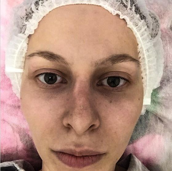 Звезду «Дома-2» изуродовал пластический хирург из Украины