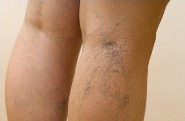 Мужчины возрастной группы 40+ стали массово избавляться от варикоза