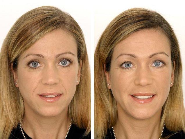 В ближайшее время лазерная подтяжка лица станет повсеместной практикой