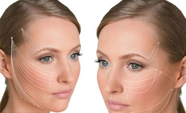 Новинка современной косметологии: нитевая подтяжка лица