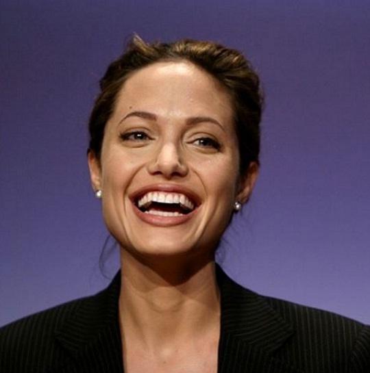 Анджелине Джоли не дали перекачать жир из живота в грудь из-за чрезмерной худобы