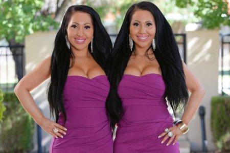 Однояйцевые близнецы из Австрии потратили более $250 тысяч на пластику