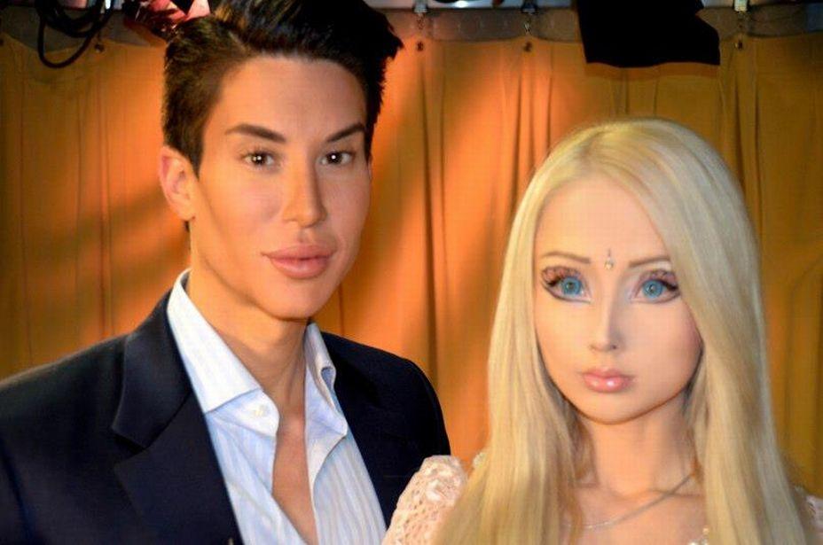 Французские Кен и Барби потратили на пластику более $320 тысяч