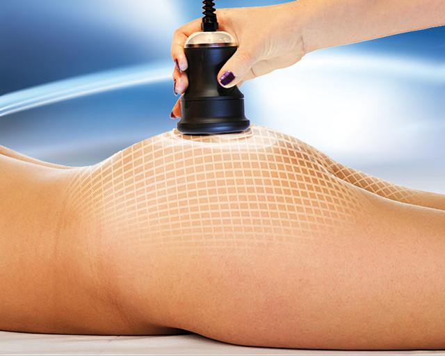 Пластические хирурги рассказали о преимуществах радиочастотной липосакции