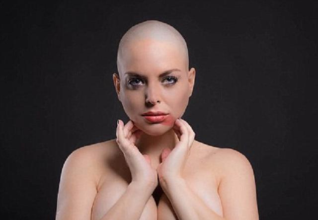 Бразильская Королева Красоты, больная раком, хочет сделать пластику, чтобы «умереть совершенной»