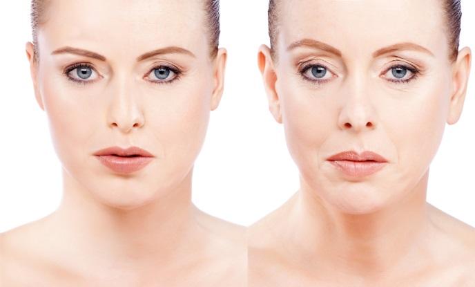 Новейшие исследования: ботокс способен ускорять процесс старения кожи
