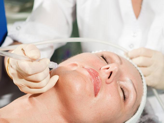 Косметологи представили новую процедуру – газожидкостный пилинг лица