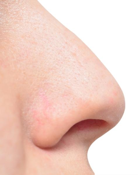Хрящевую ткань вырощенную из клеток носовой перегородки пациентов использовали для реконструкции носа