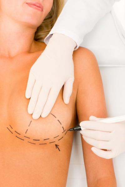 Увеличение груди: 4 правила как выбрать пластического хирурга