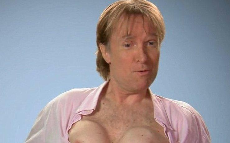 Канадец удалил грудные импланты, которые установил на спор 20 лет назад