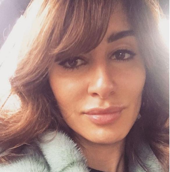 Пластический хирург подтвердил, что Тина Канделаки «перекачала» губы