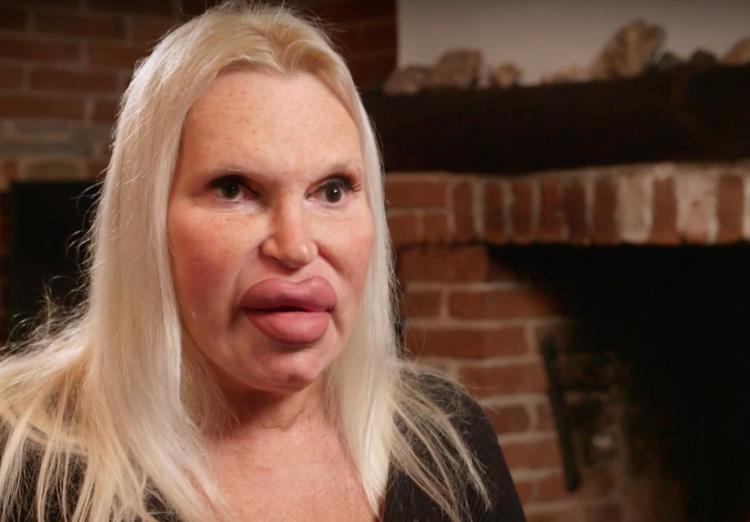 Пожилой фанат пластической хирургии превратил себя в гламурную женщину