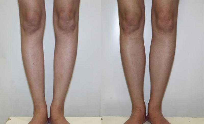 Увеличение голени симметричными имплантами 120 мл