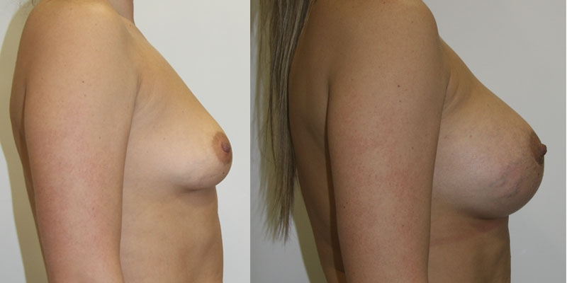 периареолярная подтяжка груди