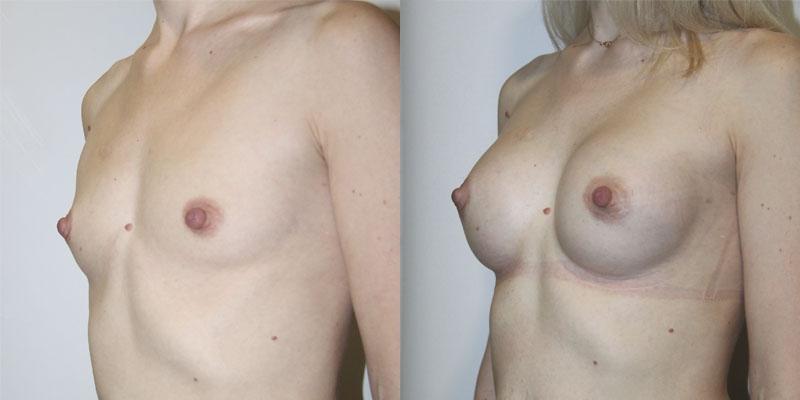 Увеличения груди с помощью семян льна