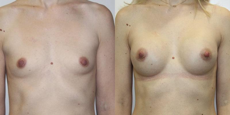 увеличение груди в москве цены