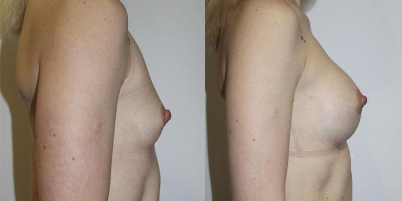 увеличение груди круглыми имплантами 255 мл
