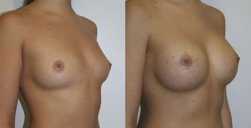 Стоимость операции по увеличению груди новосибирск