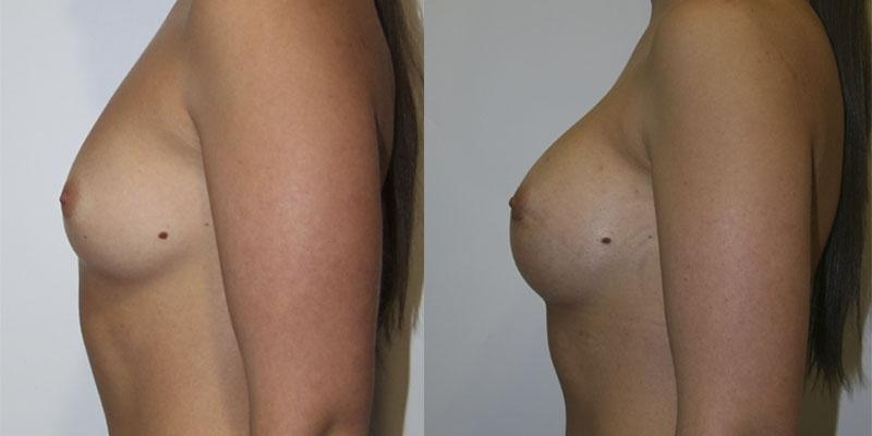 Клиника по увеличение груди