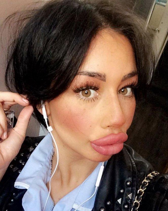 Одинокая британка решила накачивать губы, пока они не лопнут