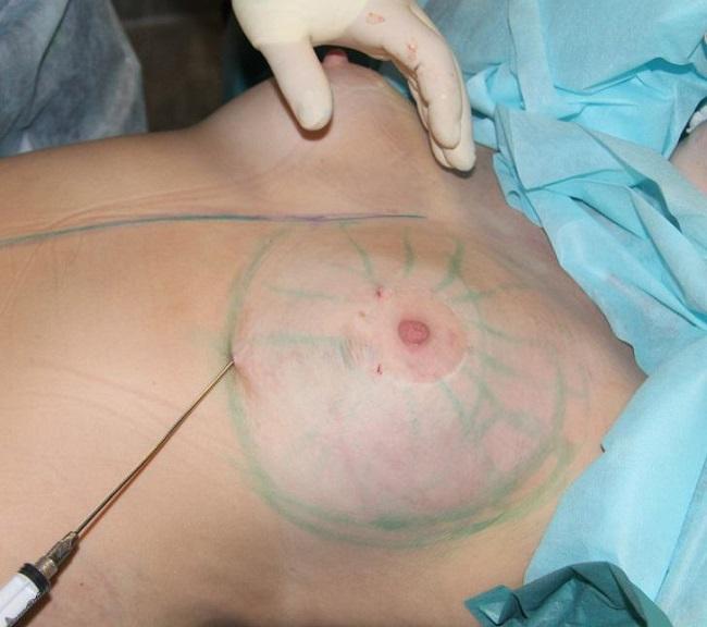 Липофилинг груди: как это делается
