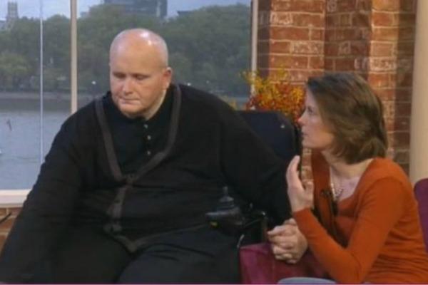 Самый толстый мужчина в мире решил избавиться от лишней кожи с помощью пластики