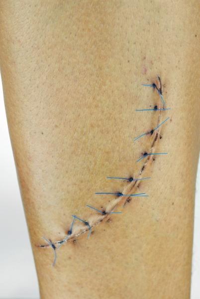 Возможно высокоэффективное лечение послеоперационных рубцов с помощью лазера!