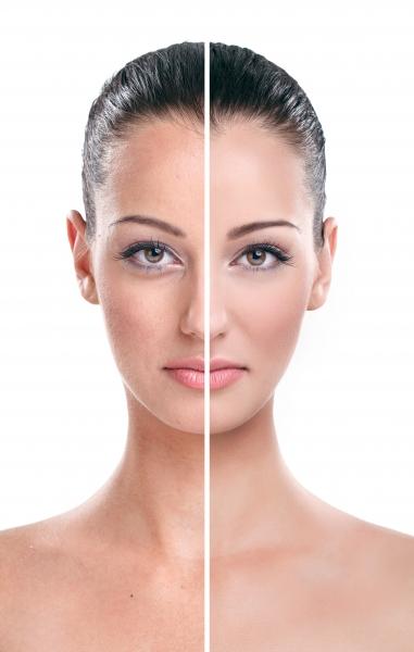 RealSelf - социальная сеть для людей, которые хотят попробовать косметическую хирургию