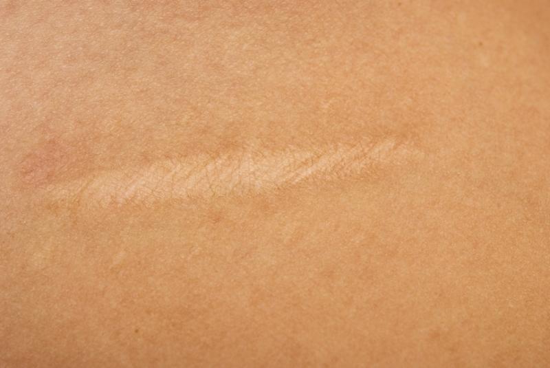 Новый пластырь с лекарственным покрытием останавливает рост рубцовой ткани и уменьшает шрамы