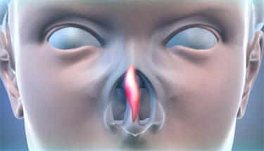 Дышите носом свободно! С Септопластикой Ваш нос в порядке!