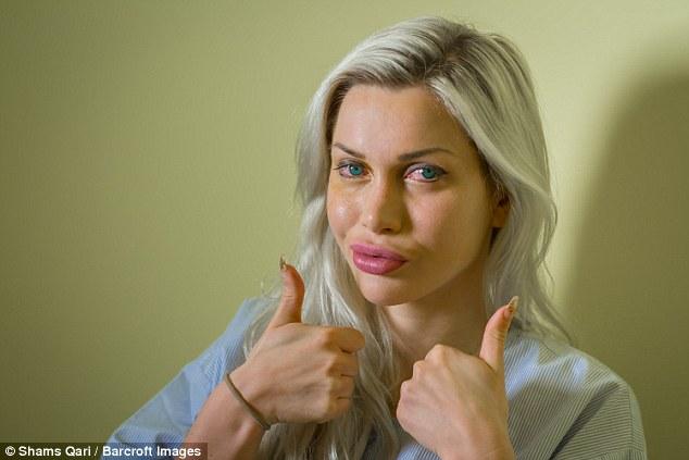 Шведская модель с талией 38 см вставила импланты в глаза